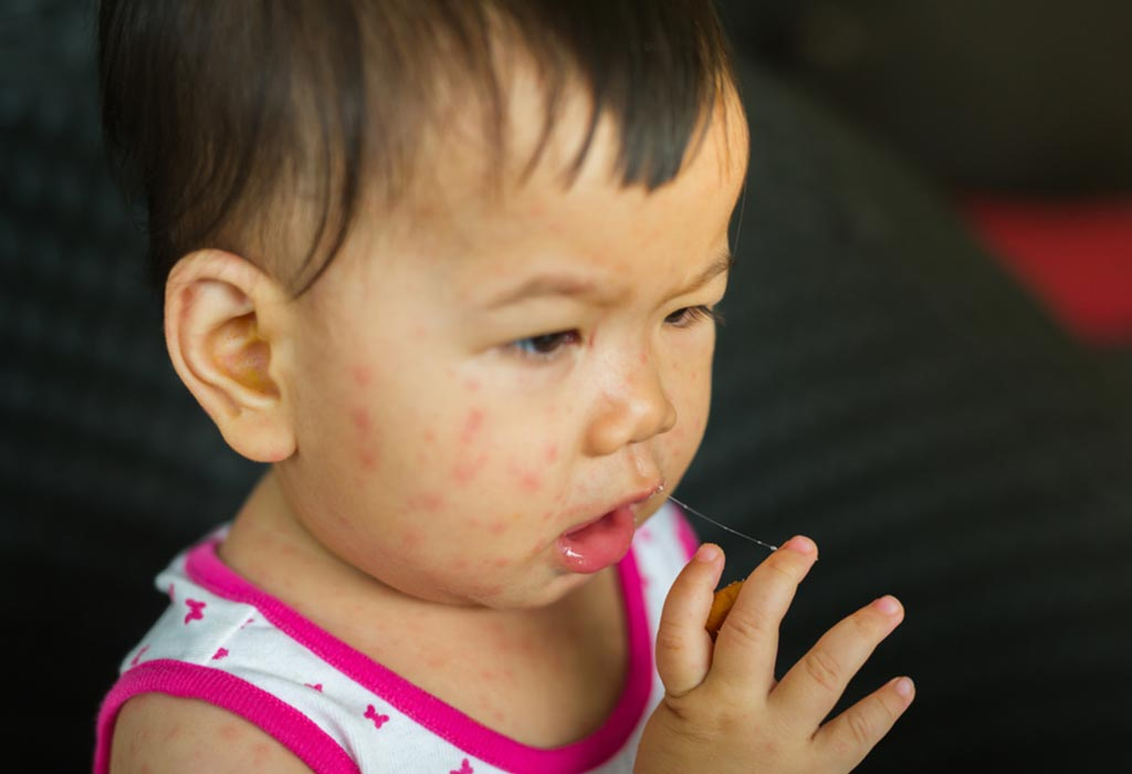 Measles in Children